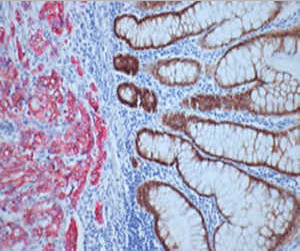 Multiplexing & Double Staining