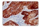 Cytokeratin5.jpg